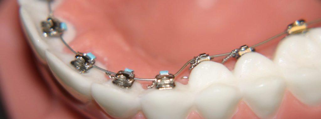 ارتودنسی دندان با استفاده از براکت