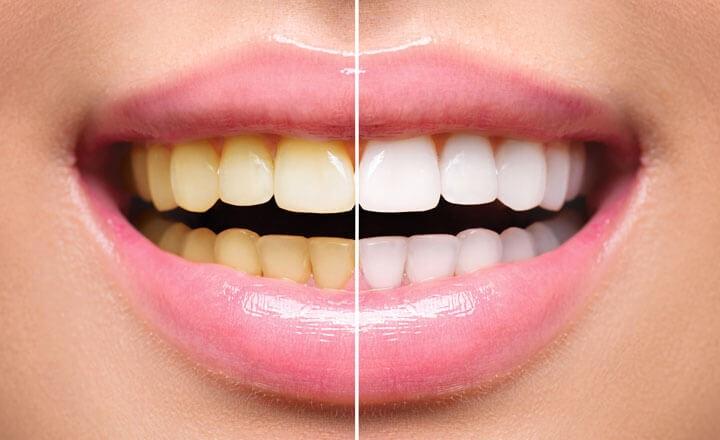 بلیچینگ و زیبا سازی دندان